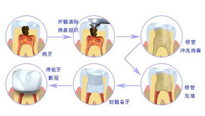 牙齿根管治疗术通常包括三个基本步骤